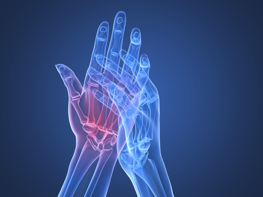 artistic view of inflammed and painful hand