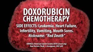 doxorubicin chemotherapy side effects
