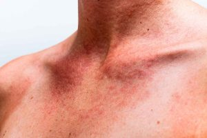 Energy Medicine Routinely Heals Skin Allergies, Rashes and even Eczema