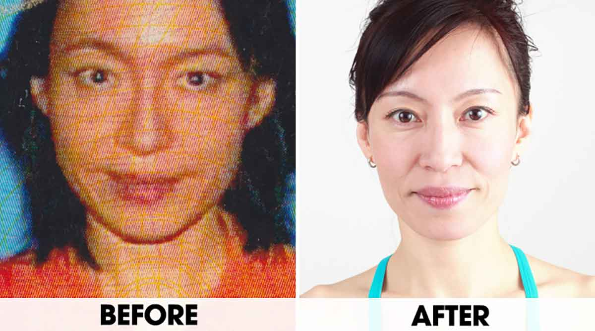 Face Yoga Exercises That Make You Look Younger